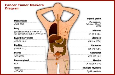 cancertumormarkersdiagram