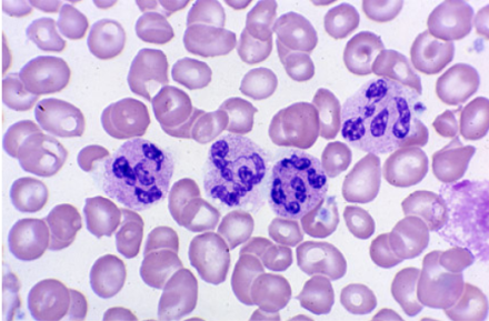 Hypersegmented Neutrophils