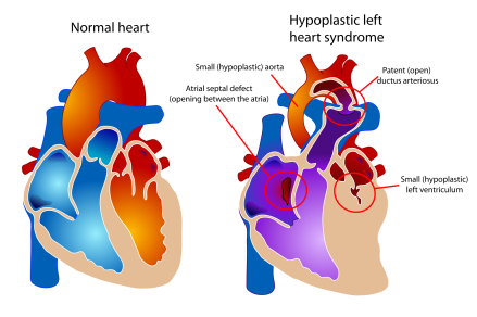 https://commons.wikimedia.org/wiki/File:Hypoplastic_left_heart_syndrome.svg