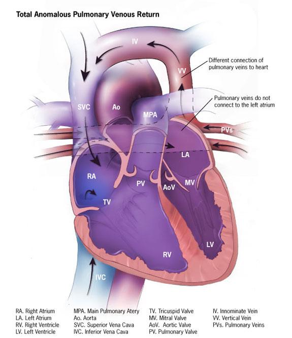 11 Congenital Cyanotic Heart Diseases Paine Podcast