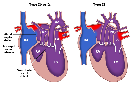 cardiovascular case study atrial septal defect