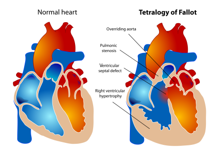 Wiki - Tetralogy_of_Fallot.svg