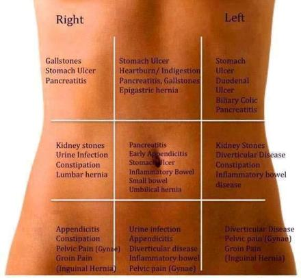 Abdominal Pain Differential
