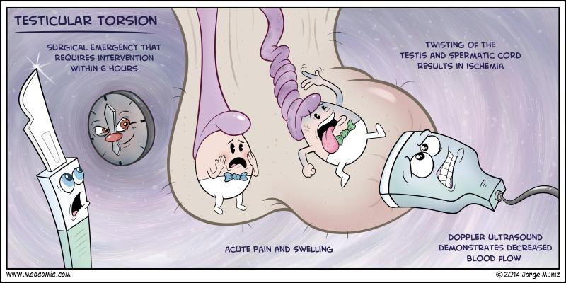 Testicular Torision