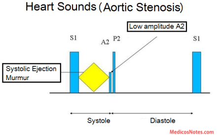 medicosnotes_heart-sounds-and-murmur-in-aortic-stenosis
