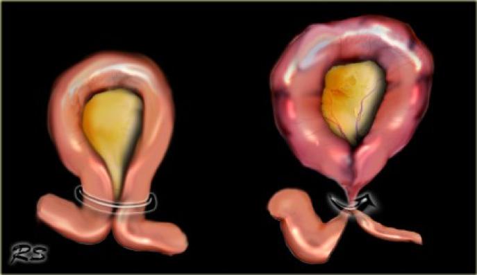 31  U2013 Small Bowel Obstruction