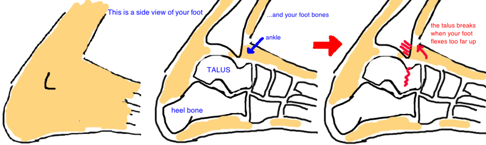 Image result for talus fracture mechanism